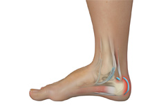 Achilles Tendon Bursitis