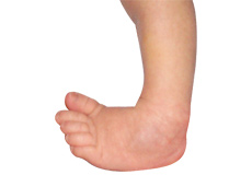 Club foot and Congenital Deformity