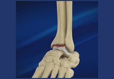 Foot and Ankle Osteoarthritis
