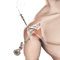 Shoulder Arthroscopy